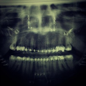 Day 2 X-Ray