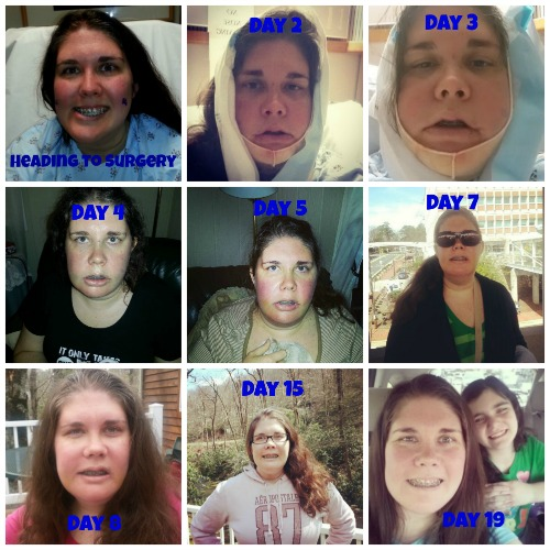 Jaw Surgery Recovery Collage